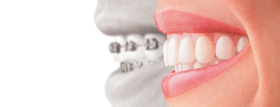 Invisalign Aquarius dental , invisible braces
