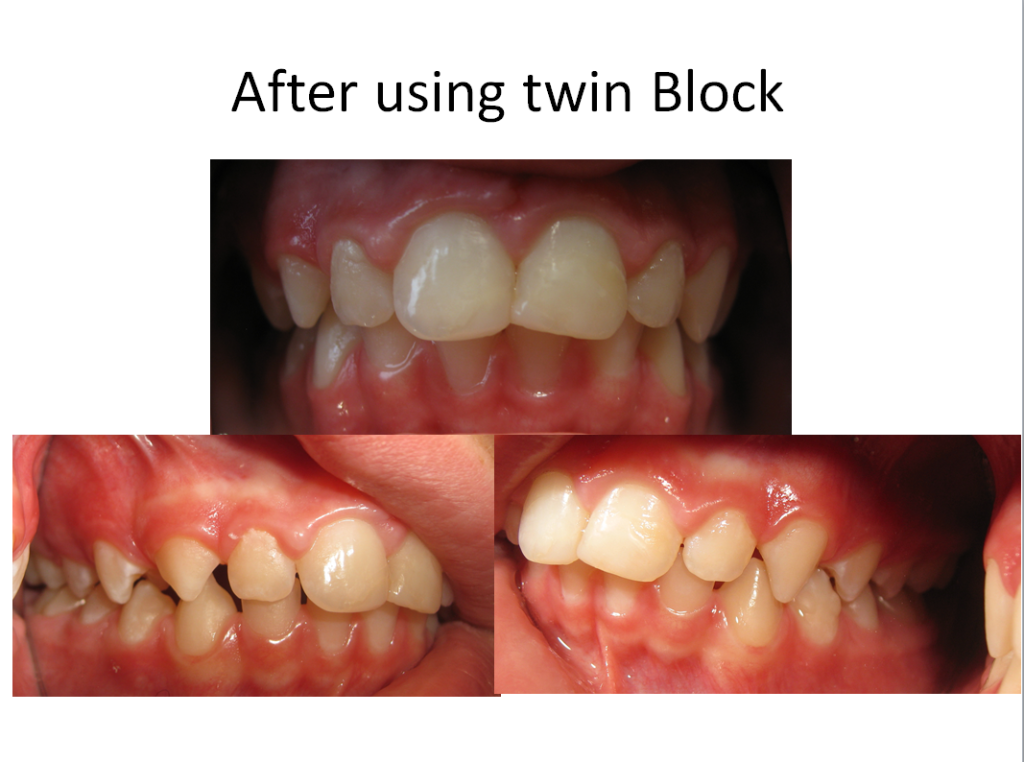 Before And Afters - Aquarius Dental, Family and Cosmetic